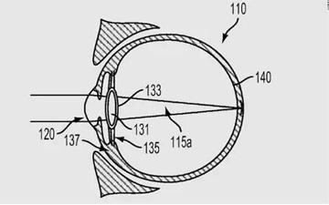 谷歌新专利用电子眼植入眼球:能矫正近视眼镜能拍照